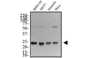 Western Blotting (WB) image for anti-High-Mobility Group Box 1 (HMGB1) (AA 100-200), (Internal Region) antibody (ABIN250703)