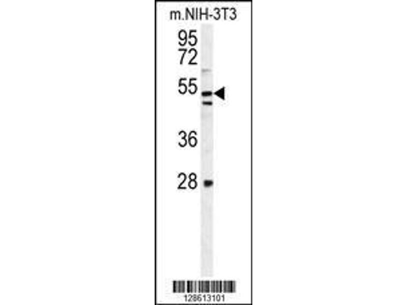 Western Blotting (WB) image for anti-K1609 (AA 426-456), (C-Term) antibody (ABIN654471)