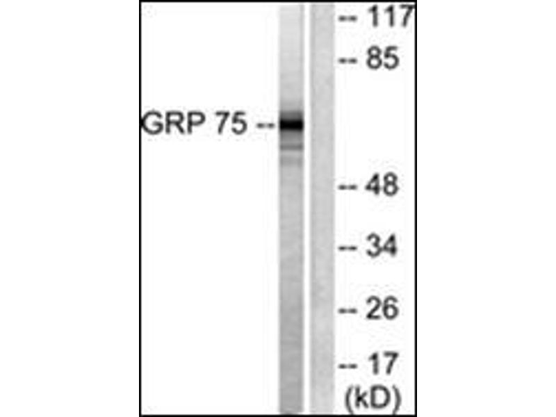 Western Blotting (WB) image for anti-Heat Shock 70kDa Protein 9 (Mortalin) (HSPA9) (C-Term) antibody (ABIN784589)