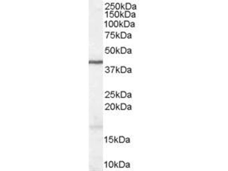 image for anti-Wingless-Type MMTV Integration Site Family, Member 3 (WNT3) (Internal Region) antibody (ABIN185634)