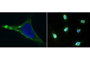 Image no. 4 for anti-Melanoma Cell Adhesion Molecule (MCAM) (AA 1-559), (Extracellular Domain) antibody (ABIN1995713)