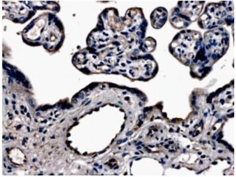Immunohistochemistry (Paraffin-embedded Sections) (IHC (p)) image for anti-Fms-Related Tyrosine Kinase 4 (FLT4) (N-Term) antibody (ABIN258821)