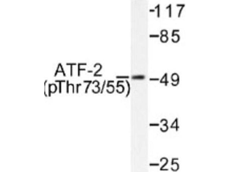Western Blotting (WB) image for anti-ATF2 antibody (Activating Transcription Factor 2) (pThr55) (ABIN4281979)