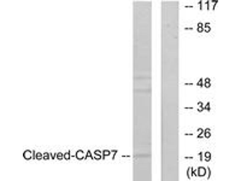 Western Blotting (WB) image for anti-Caspase 7 antibody (Caspase 7, Apoptosis-Related Cysteine Peptidase) (Cleaved-Asp198) (ABIN1536085)