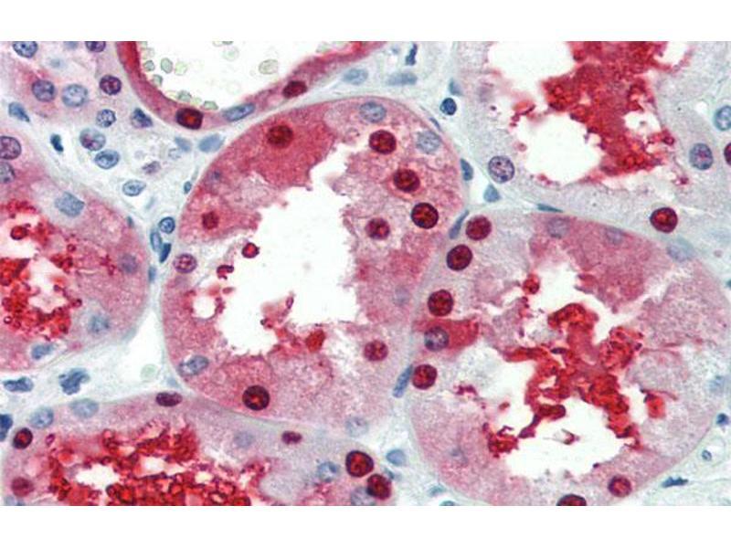 Immunohistochemistry (IHC) image for anti-GATA Binding Protein 3 (GATA3) (N-Term) antibody (ABIN2777460)