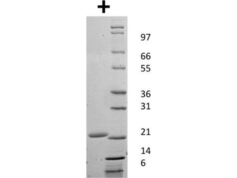Image no. 1 for Colony Stimulating Factor 3 (Granulocyte) (CSF3) protein (ABIN6699722)