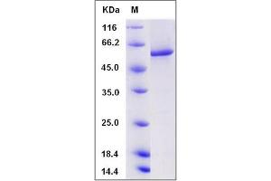 Image no. 1 for Protein Phosphatase 3, Catalytic Subunit, alpha Isoform (PPP3CA) (AA 2-521) protein (His tag) (ABIN2005854)