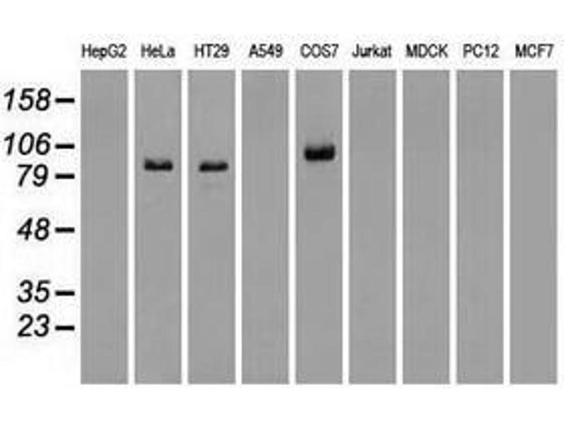 image for anti-V-Raf Murine Sarcoma Viral Oncogene Homolog B1 (BRAF) antibody (ABIN1496951)