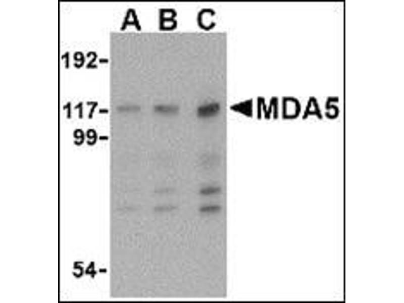 Western Blotting (WB) image for anti-Interferon Induced with Helicase C Domain 1 (IFIH1) (Center) antibody (ABIN500266)