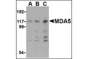 anti-Interferon Induced with Helicase C Domain 1 (IFIH1) (Center) antibody (3)