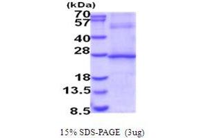 Image no. 1 for Interleukin 29 (IL29) (AA 20-200) protein (His tag) (ABIN5854065)