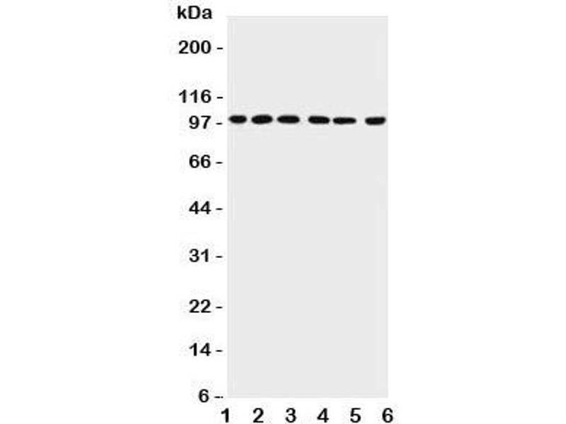 Western Blotting (WB) image for anti-PIAS1 antibody (Protein Inhibitor of Activated STAT, 1) (AA 636-651) (ABIN3032369)
