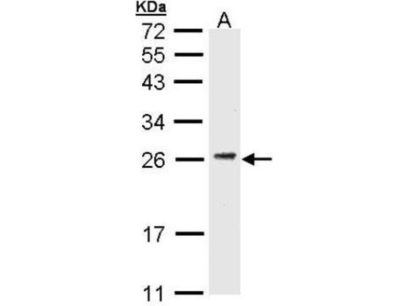Western Blotting (WB) image for anti-CD3g Molecule, gamma (CD3-TCR Complex) (CD3G) (C-Term) antibody (ABIN441281)