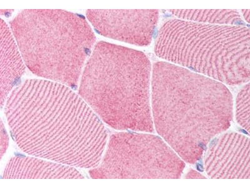 Immunohistochemistry (Paraffin-embedded Sections) (IHC (p)) image for anti-Caspase 6 antibody (Caspase 6, Apoptosis-Related Cysteine Peptidase) (N-Term) (ABIN213918)