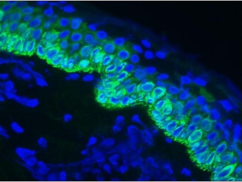 image for anti-Keratin 14 (KRT14) antibody (ABIN335329)