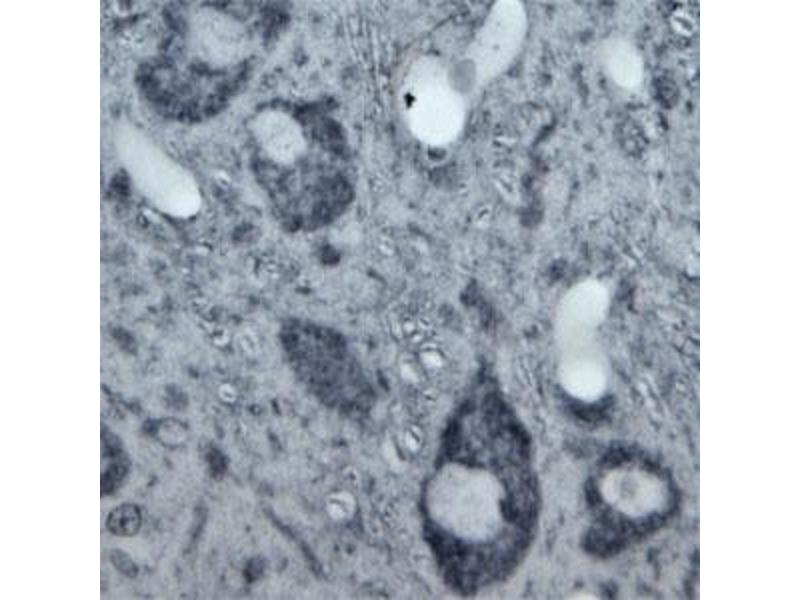 Immunohistochemistry (IHC) image for anti-Tubulin, beta (TUBB) (C-Term) antibody (ABIN571626)