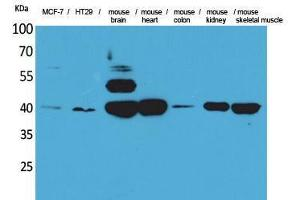 Image no. 1 for anti-Isocitrate Dehydrogenase 3 (NAD+) alpha (IDH3A) (Internal Region) antibody (ABIN3187834)