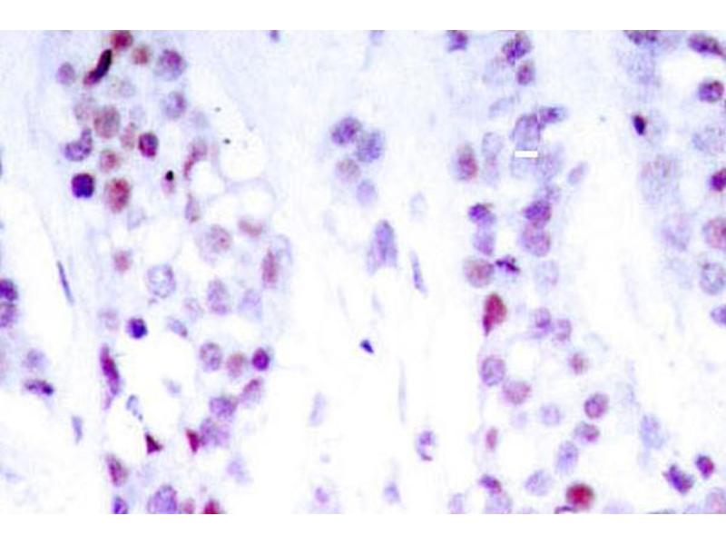 image for anti-STAT6 antibody (Signal Transducer and Activator of Transcription 6, Interleukin-4 Induced) (ABIN271831)