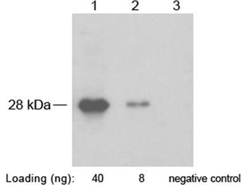 Western Blotting (WB) image for anti-SNAP Tag antibody (ABIN1573927)