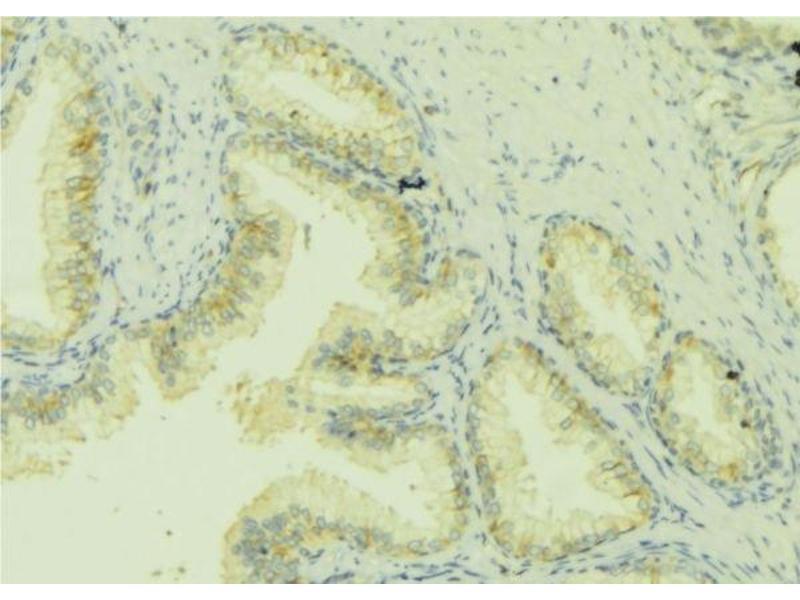Immunohistochemistry (IHC) image for anti-Chemokine (C-C Motif) Ligand 13 (CCL13) antibody (ABIN6260535)