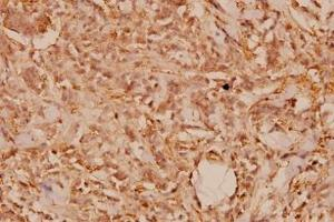 Immunohistochemistry (Paraffin-embedded Sections) (IHC (p)) image for anti-Wingless-Type MMTV Integration Site Family, Member 1 (WNT1) antibody (ABIN408121)