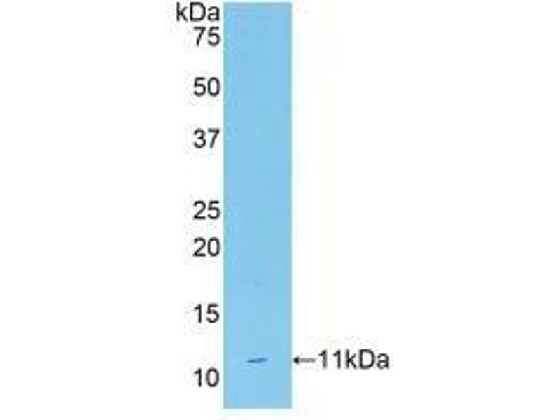 Western Blotting (WB) image for anti-CD3d Molecule, delta (CD3-TCR Complex) (CD3D) (AA 22-104) antibody (ABIN2896191)