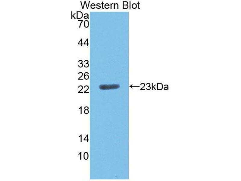 Western Blotting (WB) image for anti-CD40 Molecule, TNF Receptor Superfamily Member 5 (CD40) (AA 24-193) antibody (ABIN1871715)