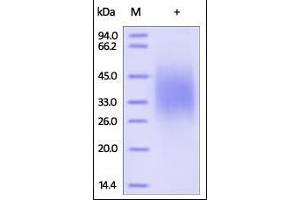 SDS-PAGE (SDS) image for Interleukin 18 Binding Protein (IL18BP) (AA 31-194) (Active) protein (His tag) (ABIN2181348)
