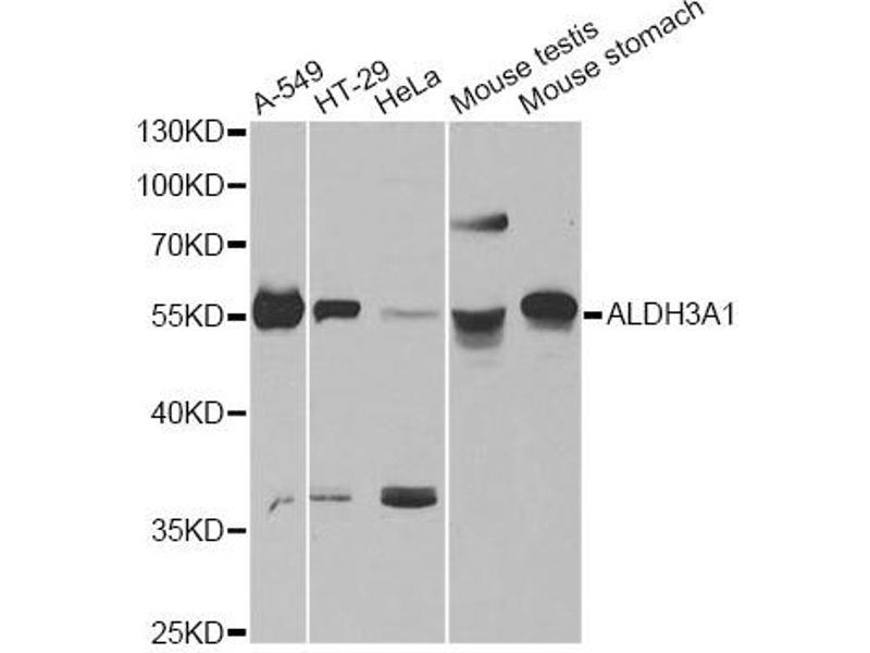Image no. 1 for anti-Aldehyde Dehydrogenase 3 Family, Member A1 (ALDH3A1) antibody (ABIN6567848)