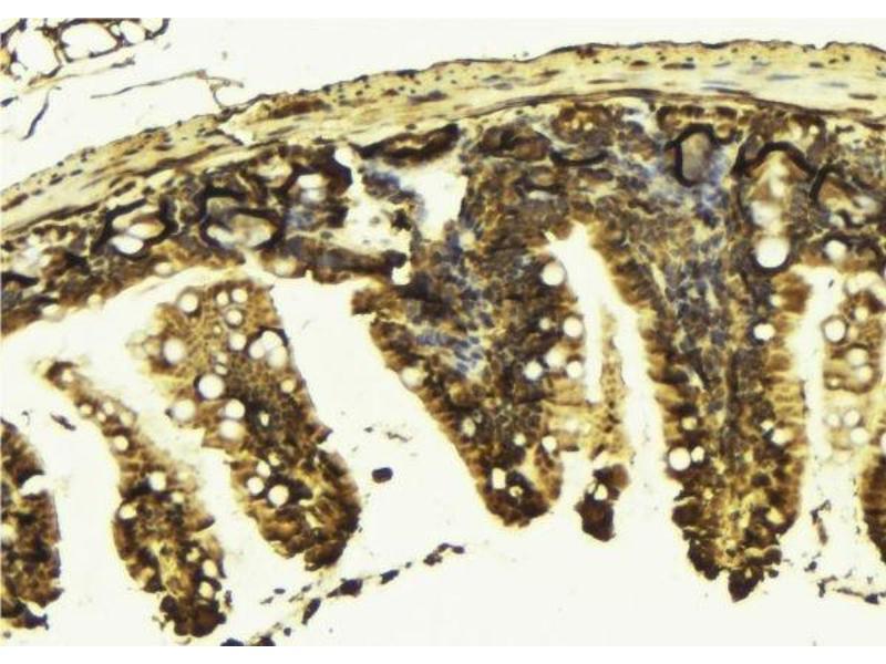 Immunohistochemistry (IHC) image for anti-Kinesin Family Member 2C (KIF2C) antibody (ABIN6262808)