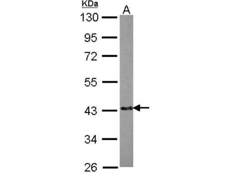 Western Blotting (WB) image for anti-Echinoderm Microtubule Associated Protein Like 2 (EML2) (Center) antibody (ABIN4307856)