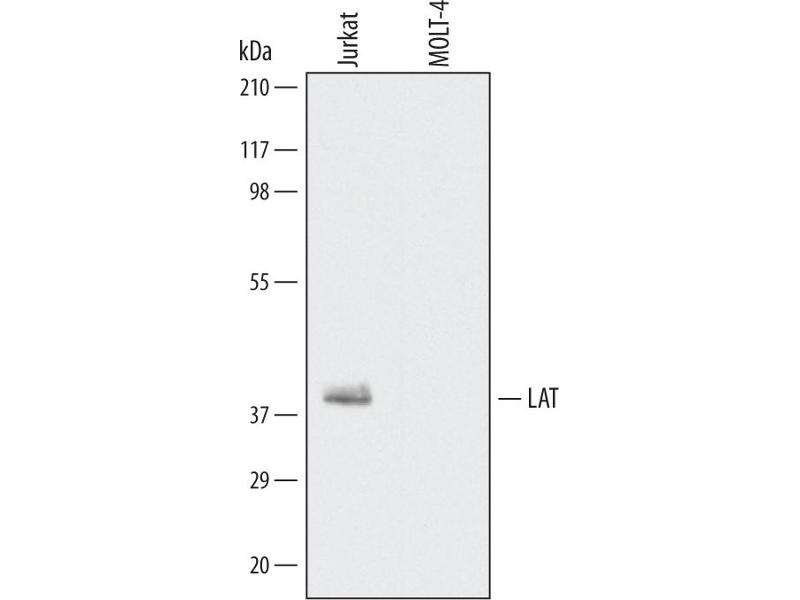 Western Blotting (WB) image for anti-Linker For Activation of T Cells (LAT) (AA 30-113) antibody (ABIN4900146)