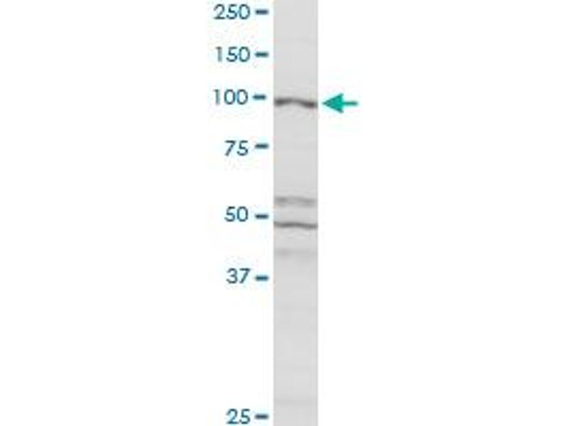 Western Blotting (WB) image for anti-Cas-Br-M (Murine) Ecotropic Retroviral Transforming Sequence (CBL) (AA 1-906) antibody (ABIN514071)