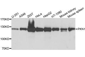 Image no. 2 for anti-Protein Kinase N1 (PKN1) antibody (ABIN1682293)