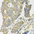 anti-IDH2 antibody (Isocitrate Dehydrogenase 2 (NADP+), Mitochondrial)