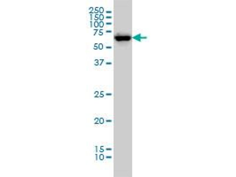 Western Blotting (WB) image for anti-Checkpoint Kinase 2 (CHEK2) (AA 1-543), (full length) antibody (ABIN564867)
