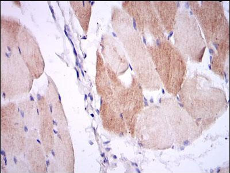 Immunohistochemistry (IHC) image for anti-IL1B antibody (Interleukin 1, beta) (ABIN1107772)