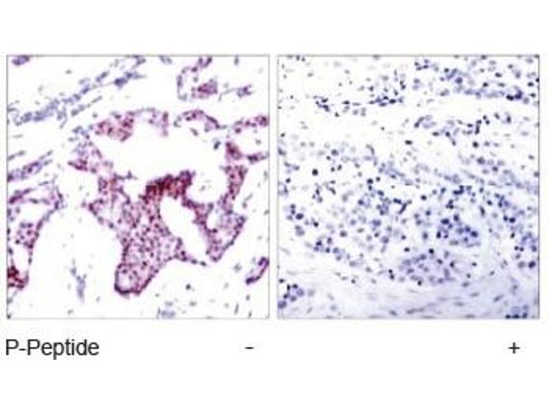 Immunohistochemistry (IHC) image for anti-Nuclear Factor-KB P65 (NFkBP65) (pSer276) antibody (ABIN257452)