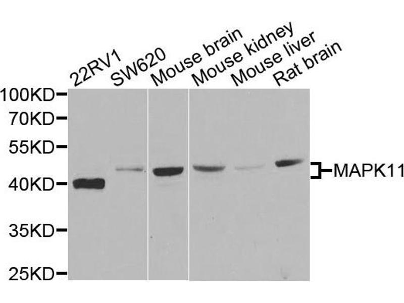 Western Blotting (WB) image for anti-MAPK11 antibody (Mitogen-Activated Protein Kinase 11) (ABIN2737137)