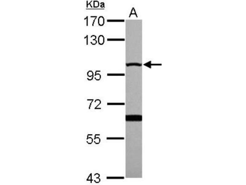 Western Blotting (WB) image for anti-MME antibody (Membrane Metallo-Endopeptidase) (ABIN4338600)