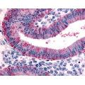 Immunohistochemistry-Paraffin: Dkk-1 Antibody [ABIN43053142] - Analysis of anti-DKK1 antibody with human uterus, endometrium.