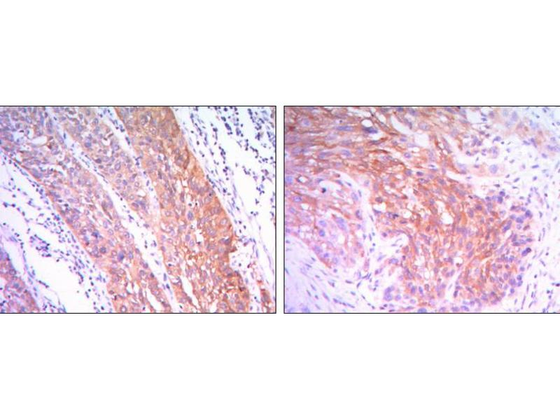 Immunohistochemistry (IHC) image for anti-Hexokinase 2 antibody (HK2) (ABIN969196)