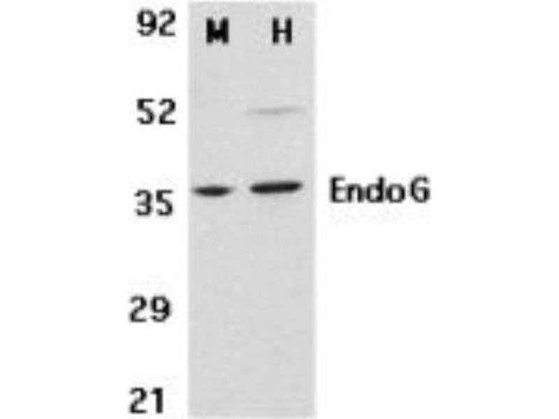 Western Blotting (WB) image for anti-Endonuclease G antibody (ENDOG) (ABIN265775)