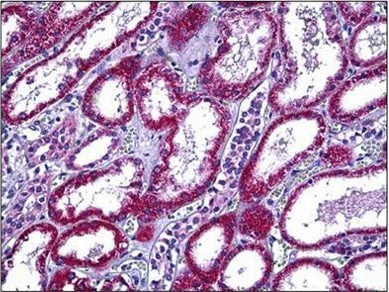 Immunohistochemistry (Paraffin-embedded Sections) (IHC (p)) image for anti-Retinol Binding Protein 5, Cellular (RBP5) (N-Term) antibody (ABIN5611549)