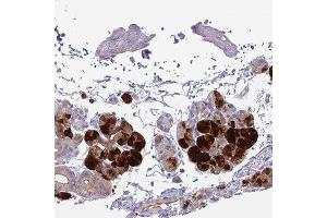 Immunohistochemistry (Paraffin-embedded Sections) (IHC (p)) image for anti-Cystatin S (CST4) antibody (ABIN4301908)