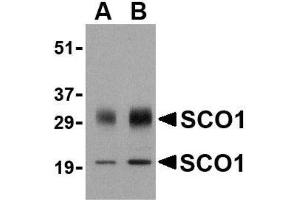 Western Blotting (WB) image for anti-SCO1 Cytochrome C Oxidase Assembly Protein (SCO1) (Center) antibody (ABIN4352257)