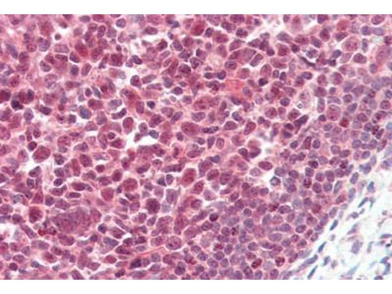 Immunohistochemistry (Paraffin-embedded Sections) (IHC (p)) image for anti-Poly (ADP-Ribose) Polymerase 1 (PARP1) (AA 396-412) antibody (ABIN462086)
