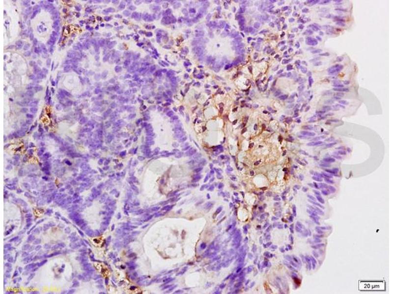 Immunohistochemistry (IHC) image for anti-Integrin beta 2 antibody (ITGB2) (AA 724-769) (ABIN669411)