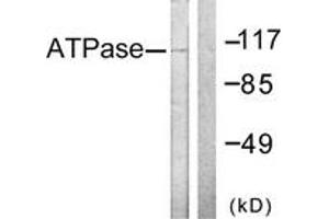 Image no. 1 for anti-Dynein, Axonemal, Heavy Chain 8 (DNAH8) (AA 5-54) antibody (ABIN1532320)