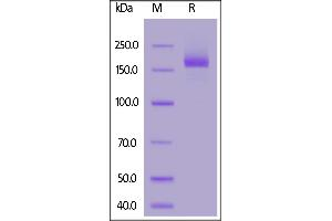 Image no. 1 for SARS-CoV-2 Spike (Super Stable Trimer) protein (His tag) (ABIN6953302)